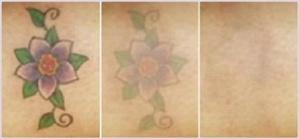 удаление татуажа отзывы фото