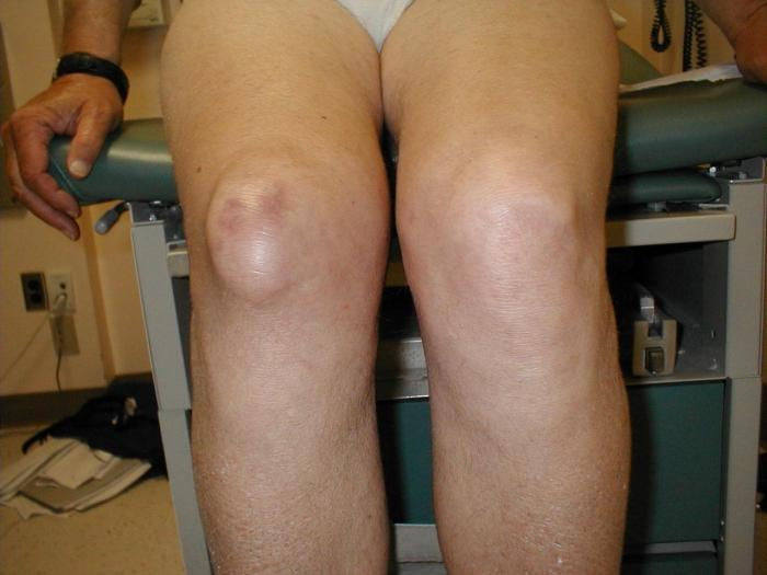 коленного сустава