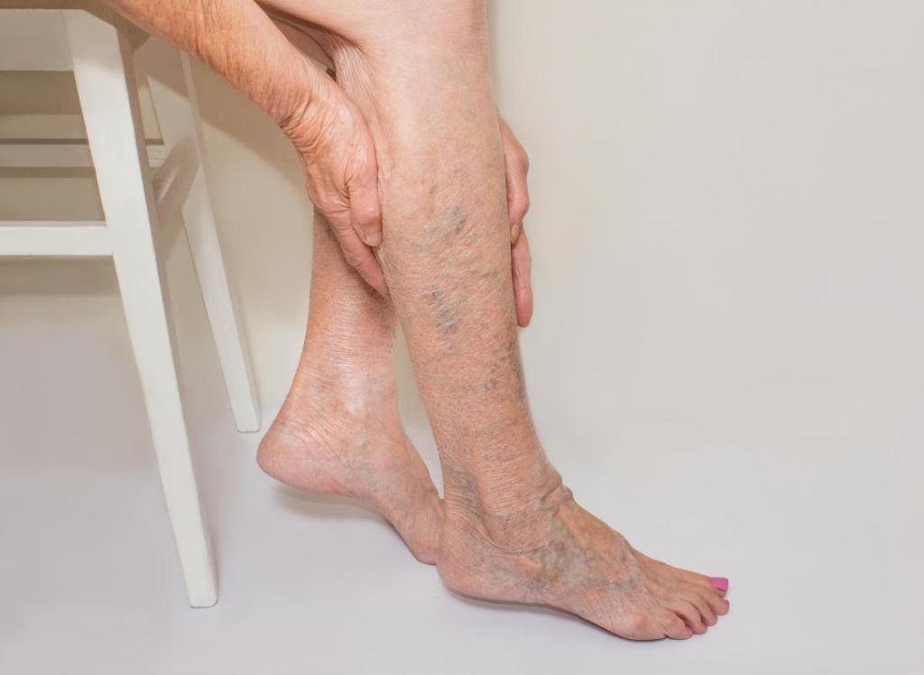 Варикоз вен на ногах картинка