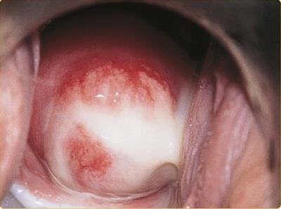 аллергия на смазку у мужчин симптомы