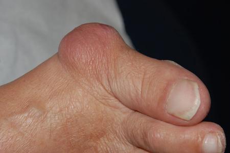 Шишки на косточках ног