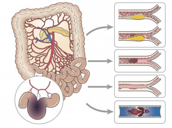 тромбоз кишечника причины