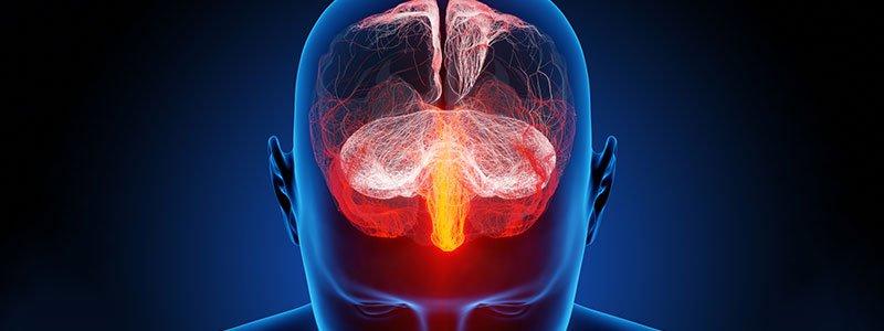 Как проверяют менингит у детей и взрослых: методы диагностики, симптомы