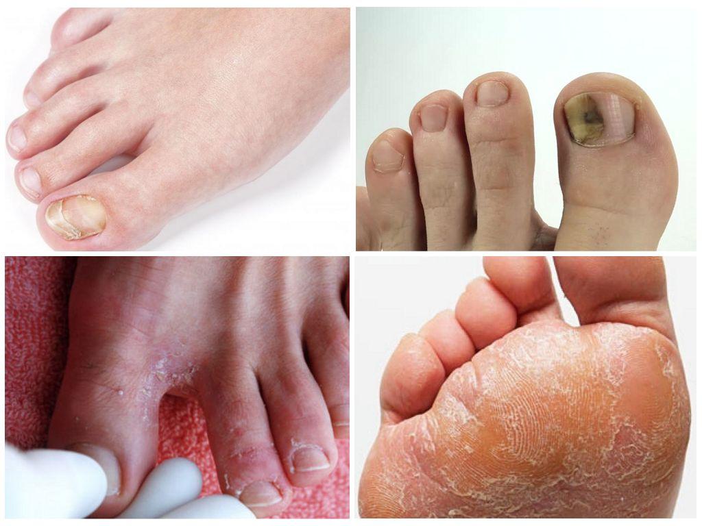 Как лечить грибок стоп на ногах в домашних условиях 661