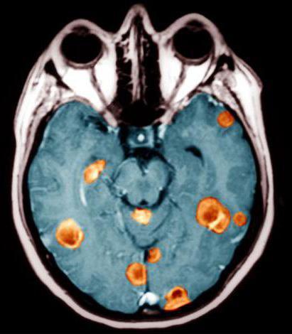 последняя стадия рака мозга