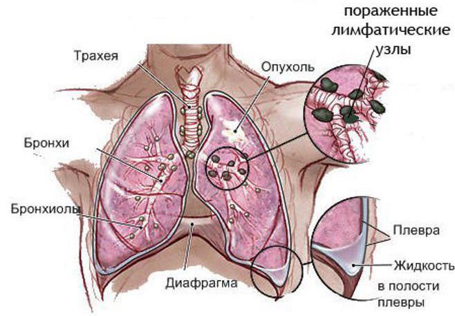 последняя стадия рака лёгких сколько живут
