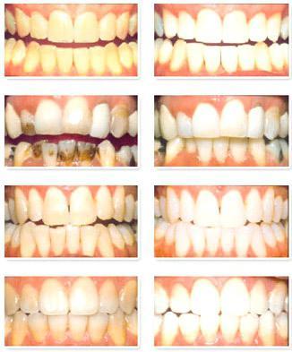 Отбеливание зубов в стоматологии: цены, отзывы
