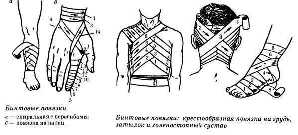 Медицина виды повязок медицина в 11веке в россии