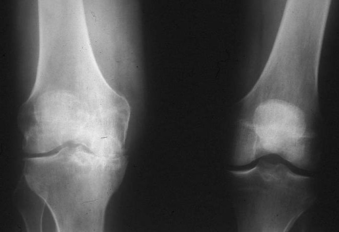 синовиальная оболочка коленного сустава