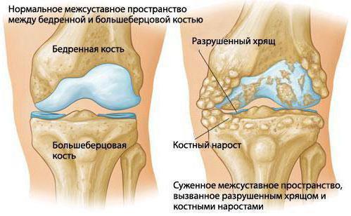 Лечение ревматоидного артрита коленного сустава