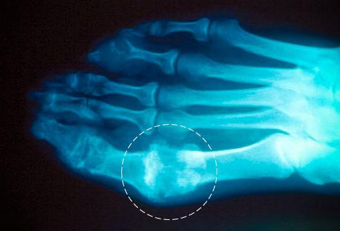 Эффективные народные средства против косточек на ногах
