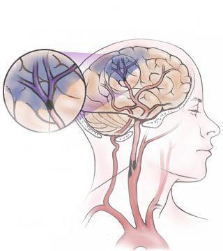 Ишемическом инсульте