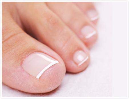 врос ноготь на большом пальце ноги