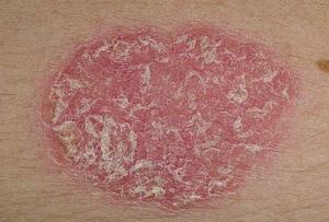 Возникли красные чешущиеся пятна на теле? Ищем причины