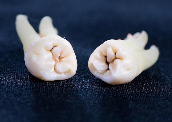 чем полоскать зубы для снятия боли