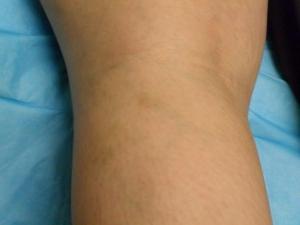 Операция на вены ног лазером стоимость