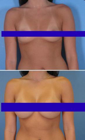 возможно ли увеличение груди в 63 года