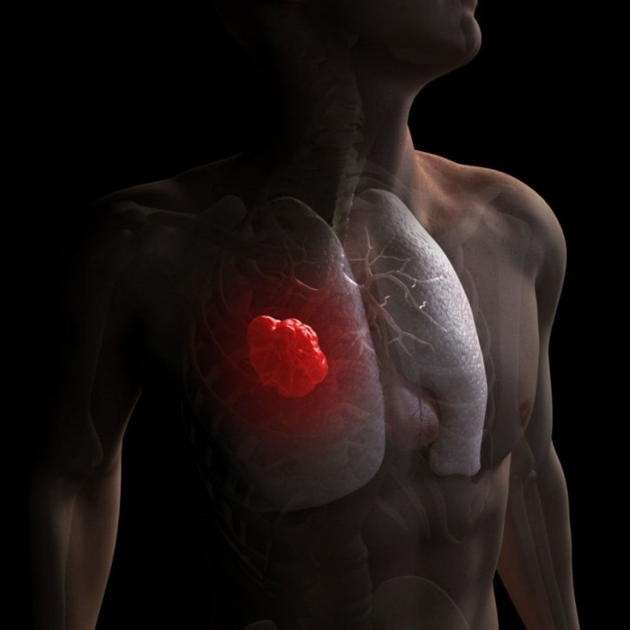 рак легких на ранней стадии симптомы