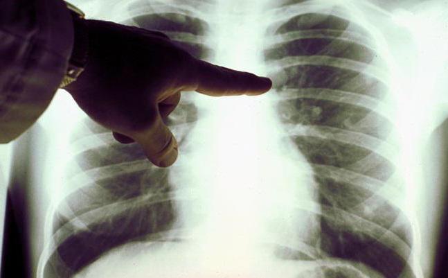 как распознать рак легких на ранней стадии фото