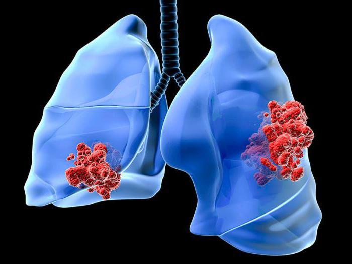 как распознать рак легких на ранней стадии у взрослых