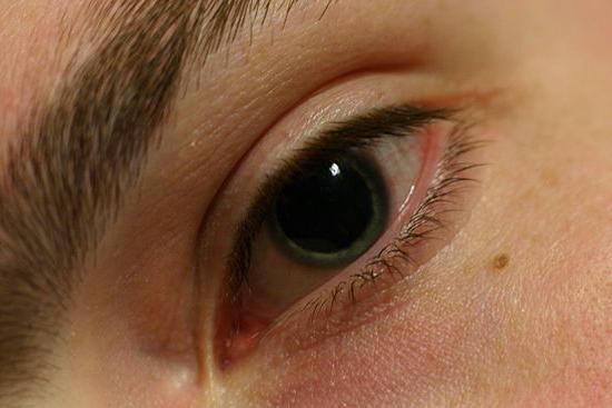 Влияние ксалатана на радужку глаз фото