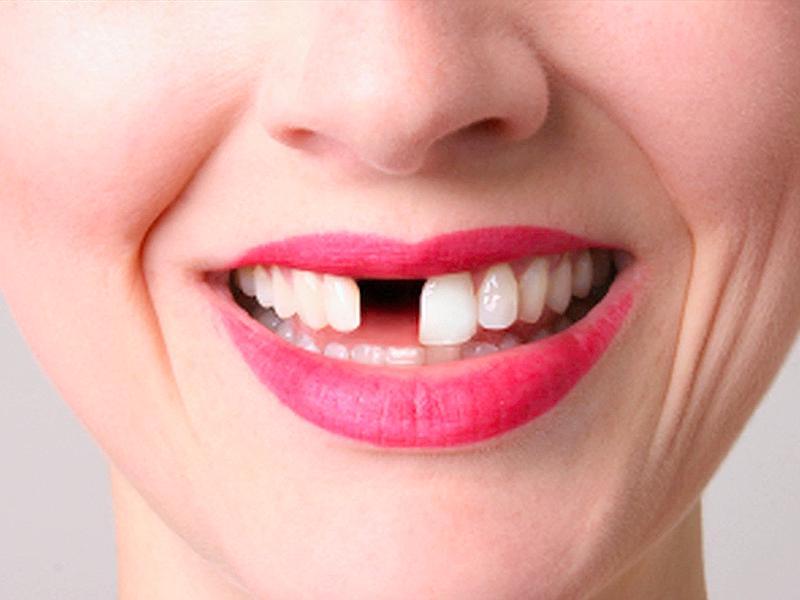 Плохие зубы у беременной 32