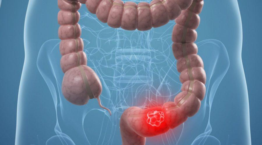 Эзофагит: лечение, симптомы, диета