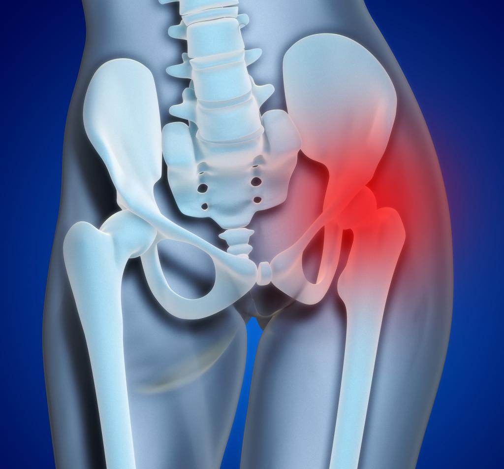 дисплазия тазобедренных суставов у взрослых