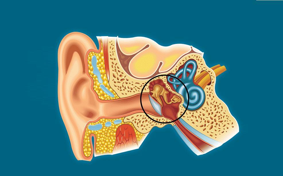 exudative otitis media in a child