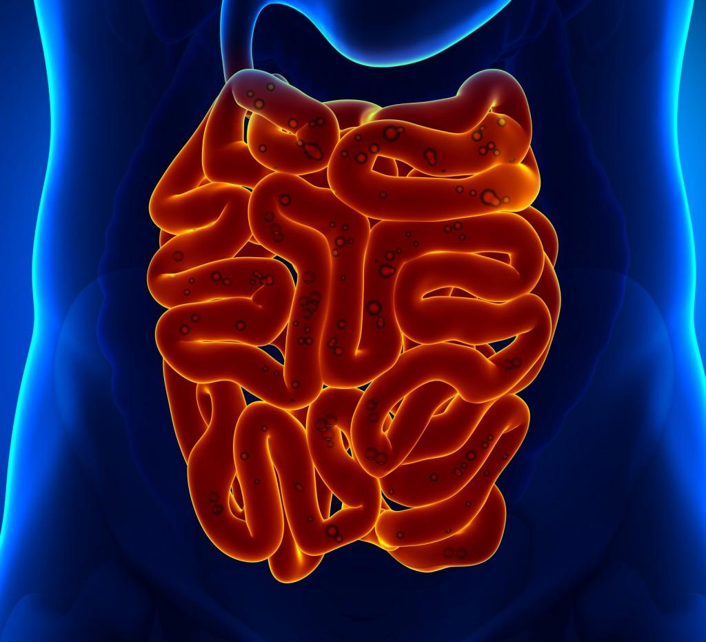 воспаление тонкой кишки симптомы