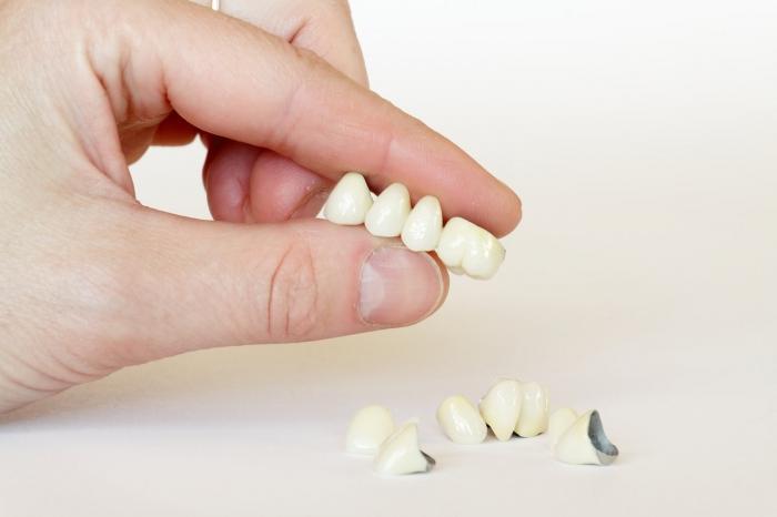 Протезирование зубов виды протезирования