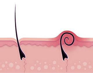 как бороться с вросшими волосами после эпиляции