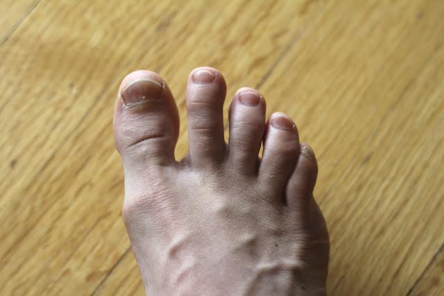 Нарост под ногтем на ноге