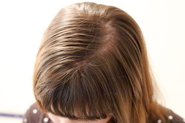 как ухаживать за волосами летом советы