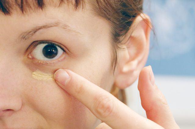 Как убрать синяки под глазами картинки