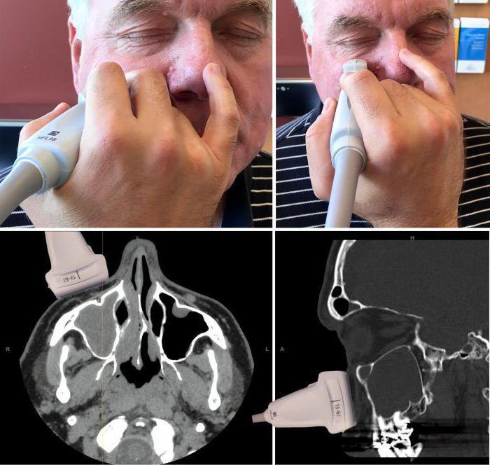 узи пазух носа что показывает