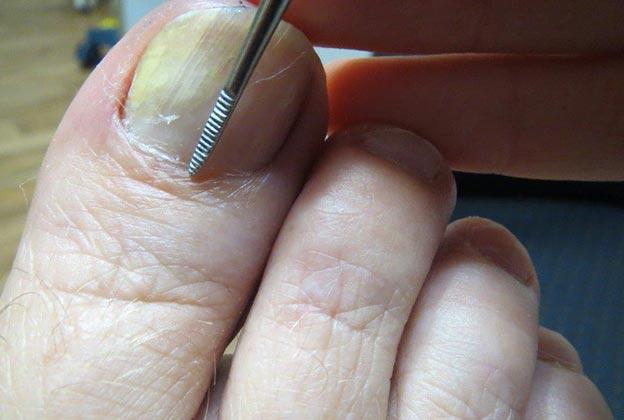 Соскоб на грибок ногтей