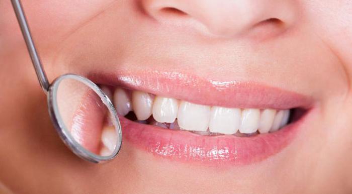 есть ли запах изо рта при тонзиллите