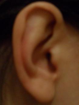 аллергия чешутся уши снаружи