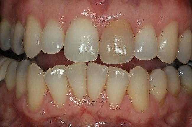 пигментация на зубах