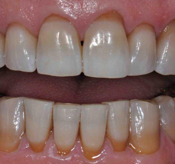 фтор для зубов