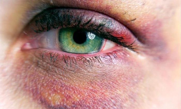 перелом орбитальной кости глаза
