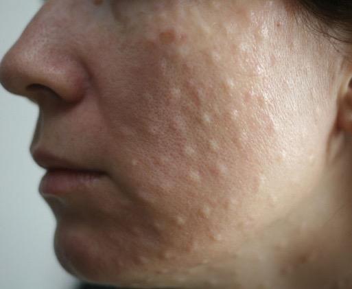 Сухость кожи после биоревитализации