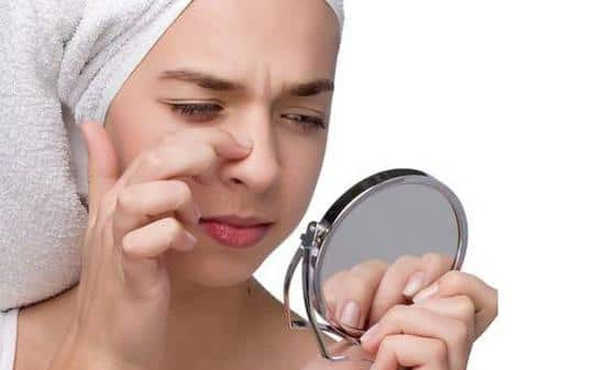 acne on the nose in women