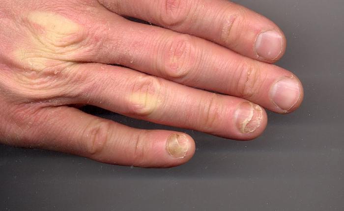 Как вылечить дрожжевой грибок ногтей на ногах
