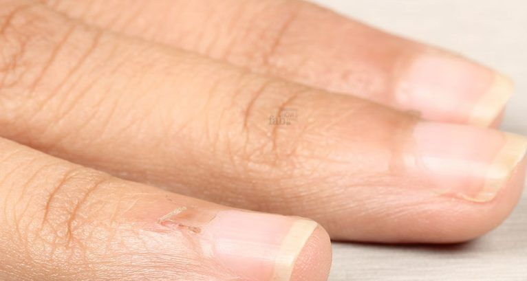 why the burrs appear on the fingers