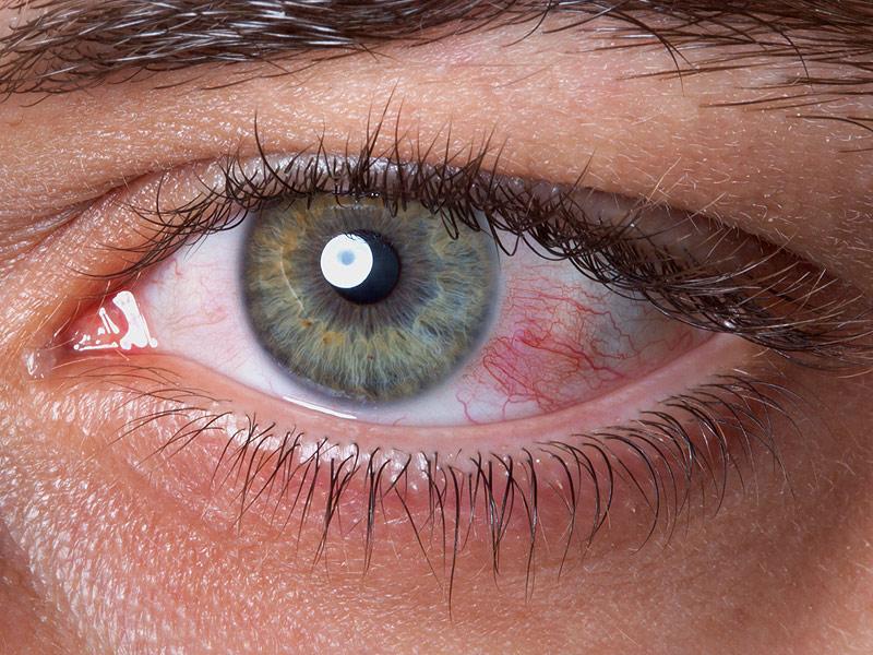 Повреждение глазной роговицы