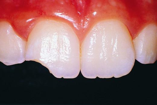 К чему снятся сломанные зубы? Узнаем!