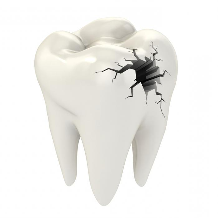 к чему снятся сломанные зубы