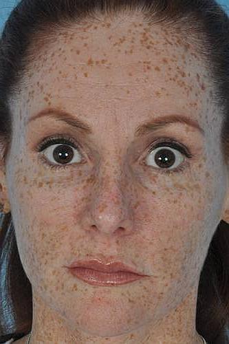 Изменение пигментации кожи на лице